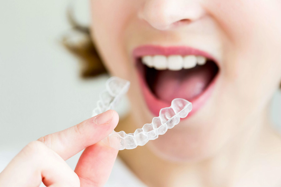 invisalign clear braces cost
