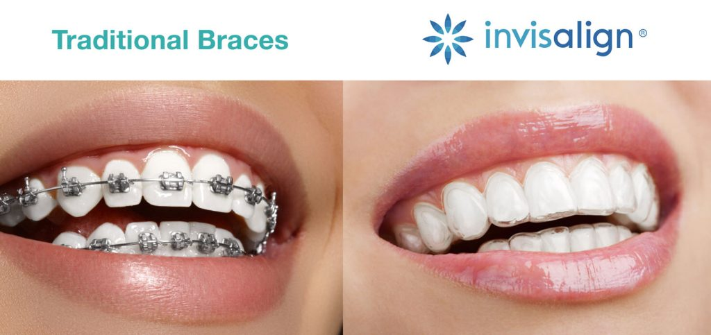 Invisalign vs traditional metal braces