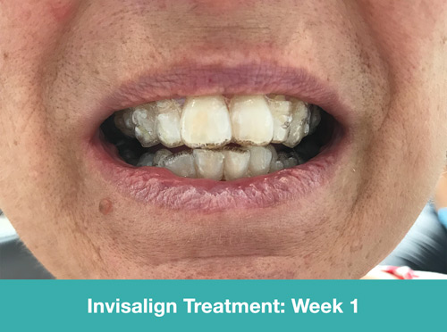 invisalign treatment - week 1