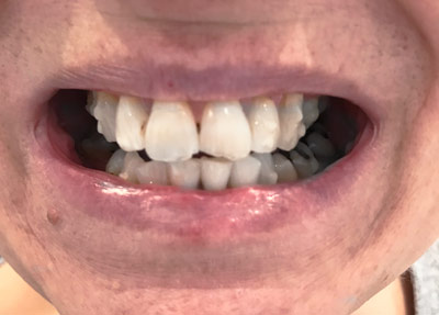 invisalign after treatment