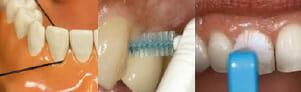 flossing to stop peridontal disease